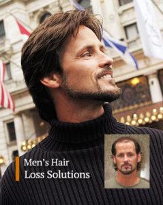 Mens hair loss replacement Pittsburgh Pennsylvania