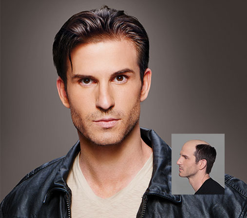 Male Hair Loss Replacement Pittsburgh PA