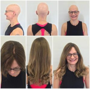 Alopecia Medical Wigs Pittsburgh PA - Chemotherapy Wigs Toppers