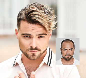 mens hair replacement pittsburgh pa